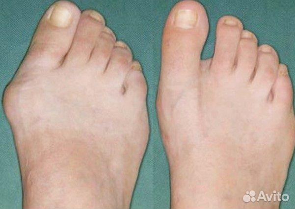Лечение варикозного расширения вен и тромбофлебит
