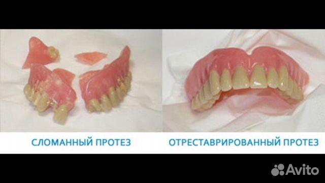 Чем и как склеить зубной протез в домашних условиях
